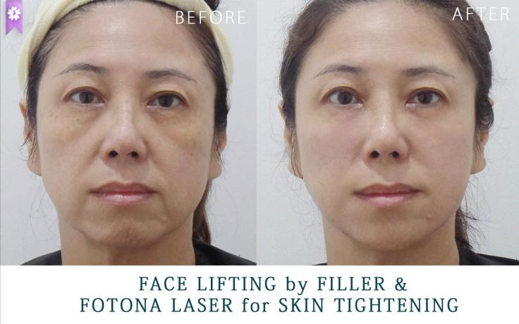 facelift by filler and fotona laser (2)